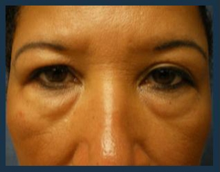 Eyelid Lift Before & After Patient #942