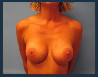 Breast Augmentation Before & After Patient #482