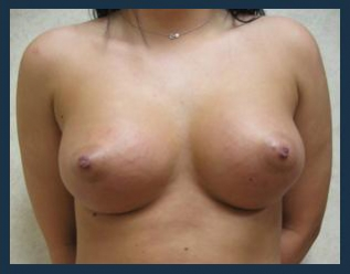 Breast Augmentation Before & After Patient #486