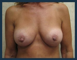 Breast Augmentation Before & After Patient #491