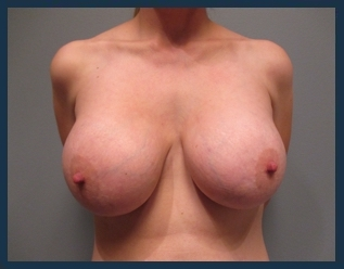 Breast Augmentation Before & After Patient #551