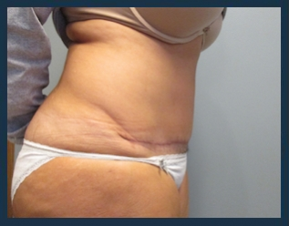 Tummy Tuck Before & After Patient #877