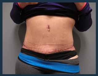 Tummy Tuck Before & After Patient #911
