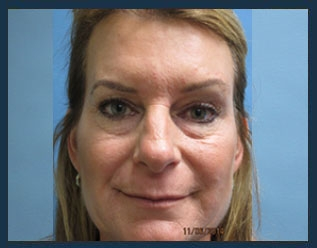Botox Before & After Patient #915