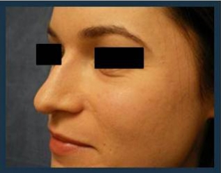 Rhinoplasty Before & After Patient #986