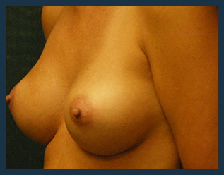 Breast Augmentation Before & After Patient #281