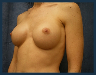 Breast Augmentation Before & After Patient #298