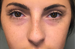 Volbella Before & After Patient #1849