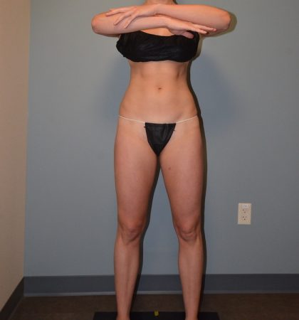 CoolSculpting Before & After Patient #1904