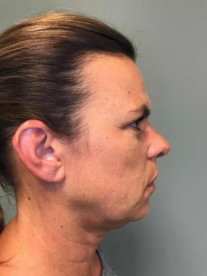 Voluma Before & After Patient #1861
