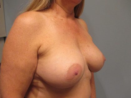 Breast Augmentation Before & After Patient #1890