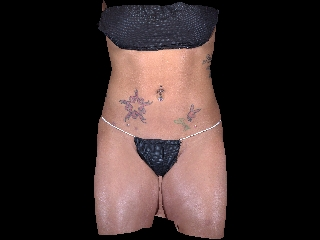 Liposuction Before & After Patient #1883