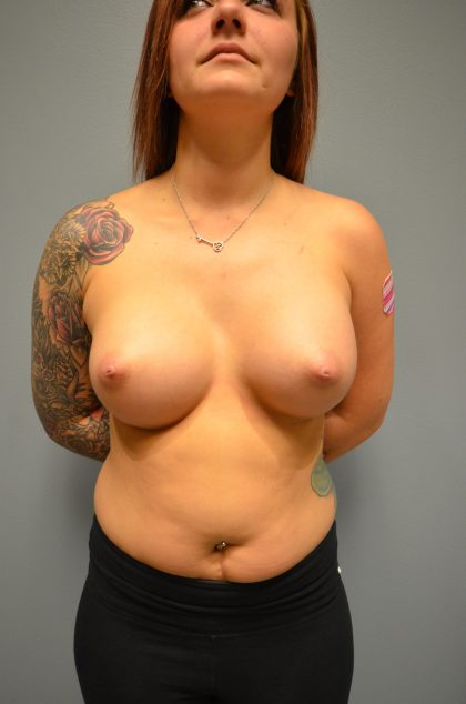 Breast Augmentation Before & After Patient #1874