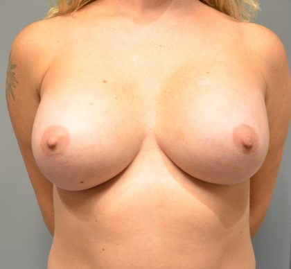 Breast Augmentation Before & After Patient #1925