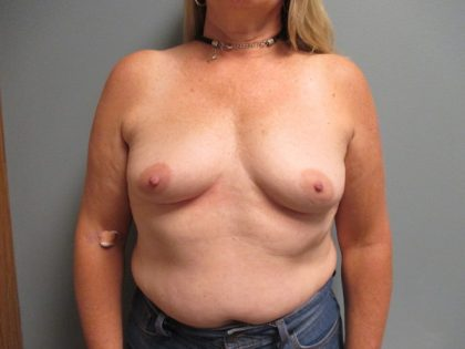 Breast Augmentation Before & After Patient #1953