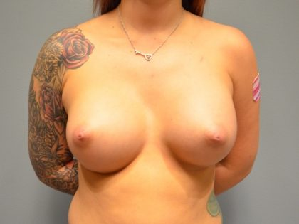 Breast Augmentation Before & After Patient #1964