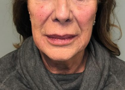 Voluma Before & After Patient #1975