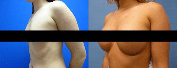 Breast Augmentation Toledo Oh Michigan Artisan Cosmetic Surgery
