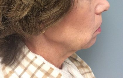 Juvederm Before & After Patient #2018