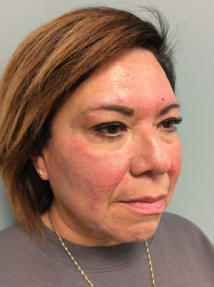Voluma Before & After Patient #2071