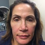 Voluma Before & After Patient #2029