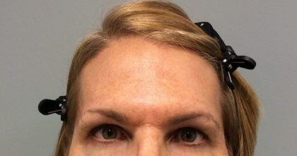 Voluma Before & After Patient #2194