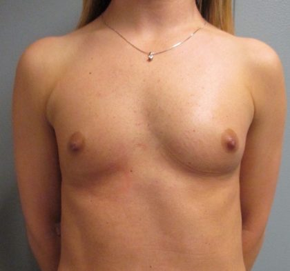 Breast Augmentation Before & After Patient #2124