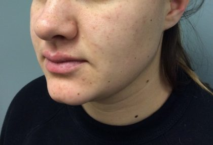 Kybella Before & After Patient #2180