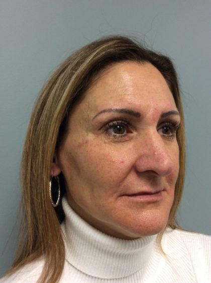 Juvederm Before & After Patient #2090