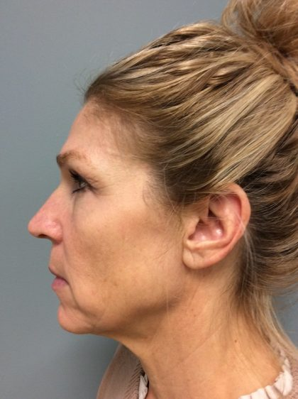 Voluma Before & After Patient #2173