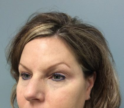 Botox Before & After Patient #2183