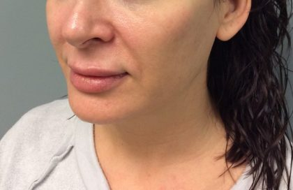Voluma Before & After Patient #2189