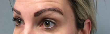 Microblading Before & After Patient #2105