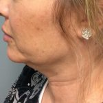 Kybella Before & After Patient #2199