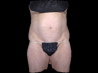 CoolSculpting Before & After Patient #2102