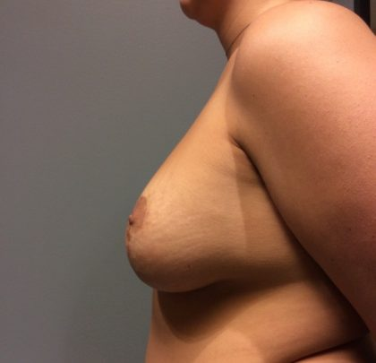 Breast Augmentation Before & After Patient #2237