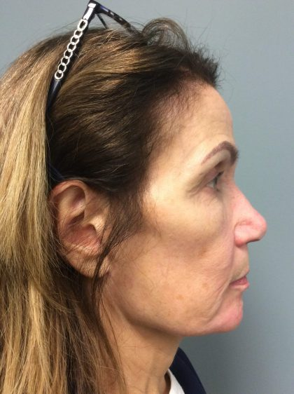 Voluma Before & After Patient #2209