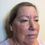 Microblading Before & After Patient #2287
