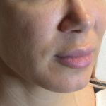 Vollure Before & After Patient #2267