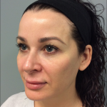 Volbella Before & After Patient #2281