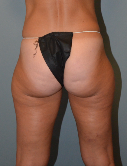 CoolSculpting Before & After Patient #2260