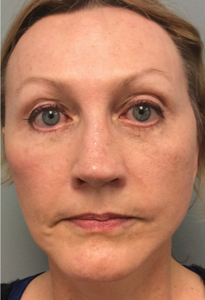 Facelift Before & After Patient #2318