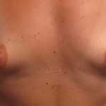Breast Augmentation Before & After Patient #2293