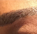 Microblading Before & After Patient #2416