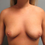 Breast Augmentation Before & After Patient #2394