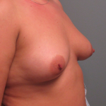 Breast Augmentation Before & After Patient #2373