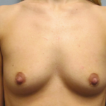 Breast Augmentation Before & After Patient #2354