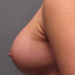Breast Augmentation Before & After Patient #2405