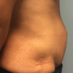 Panniculectomy Before & After Patient #2384