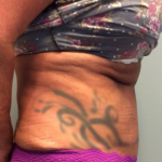 Tummy Tuck Before & After Patient #2445